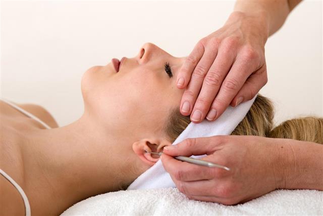 ear acupuncture technique