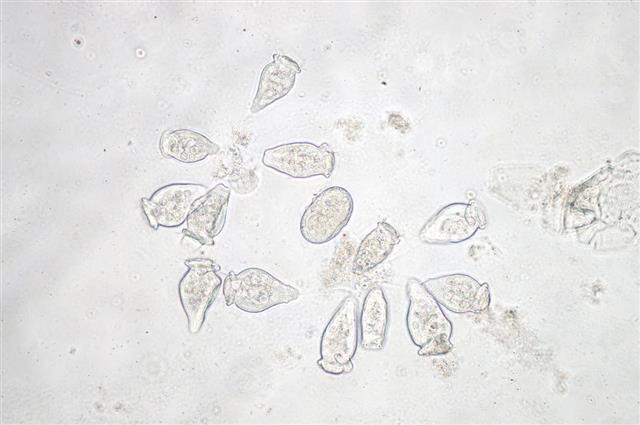 Vorticella is a genus of protozoa