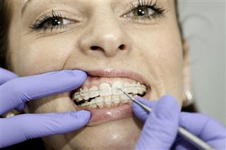 Fixing braces