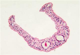 Human Parasite Schistosoma