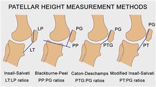 Patella measurement