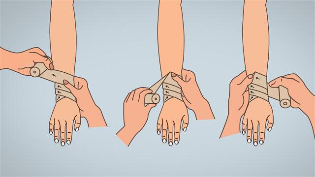 Diverging Spica Bandaging Technique