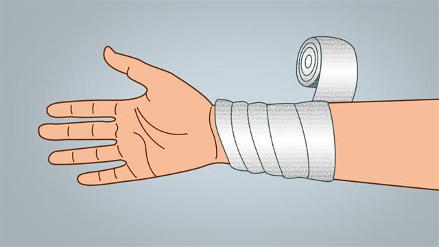 Spiral Bandaging Technique