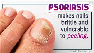 Causes Of Peeling Fingernails