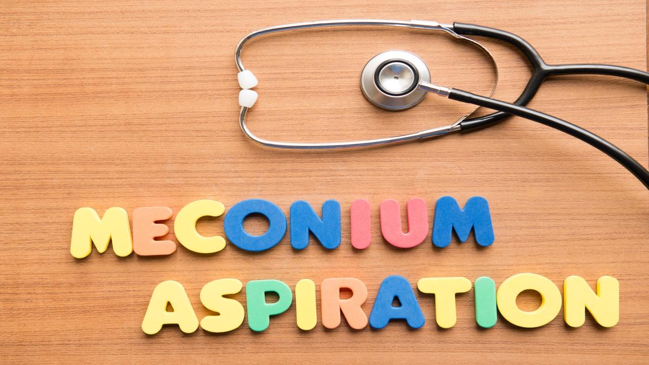Meconium Aspiration and its Treatment