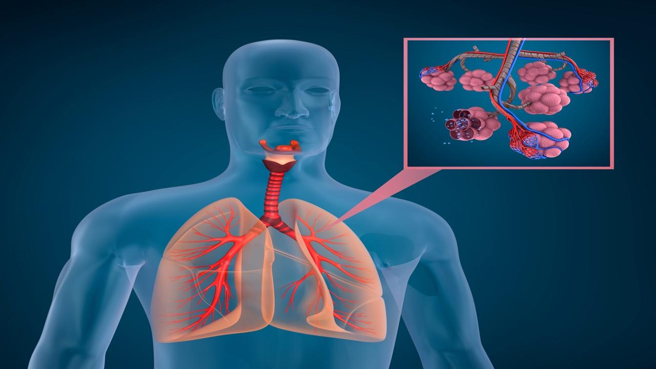 Mucoviscidosis - Cystic Fibrosis
