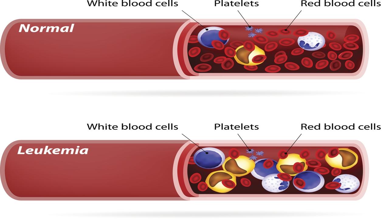 History of Leukemia
