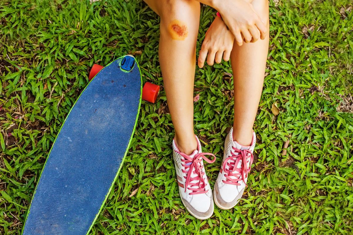Menstrual Cycle and Leg Pain