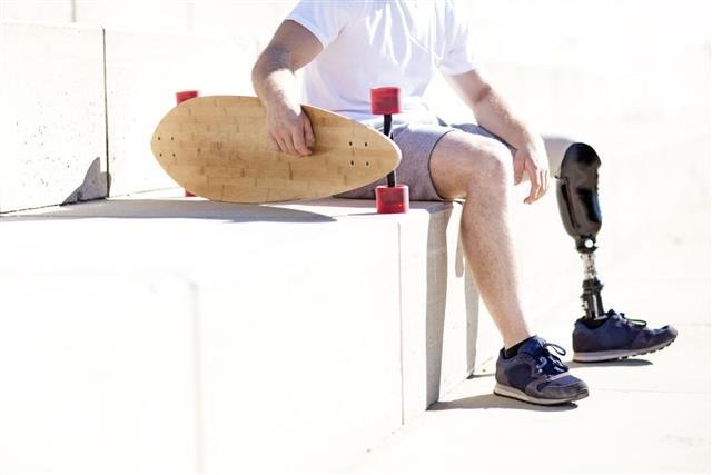 amputee skateboarder