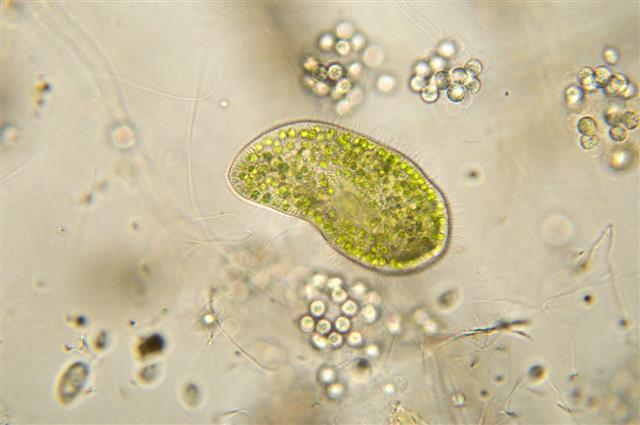 Paramecium Bursaria Micrograph