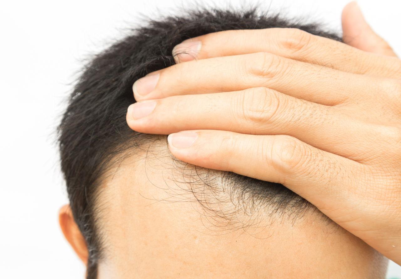Hair Breakage Around Hairline