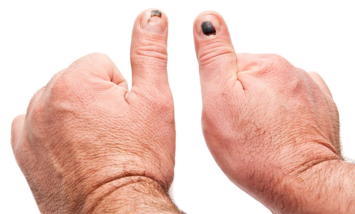 Itchy Swollen Hands