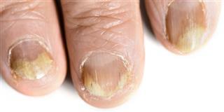 Finger fungus