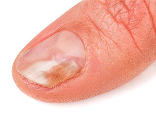 Finger with gungus