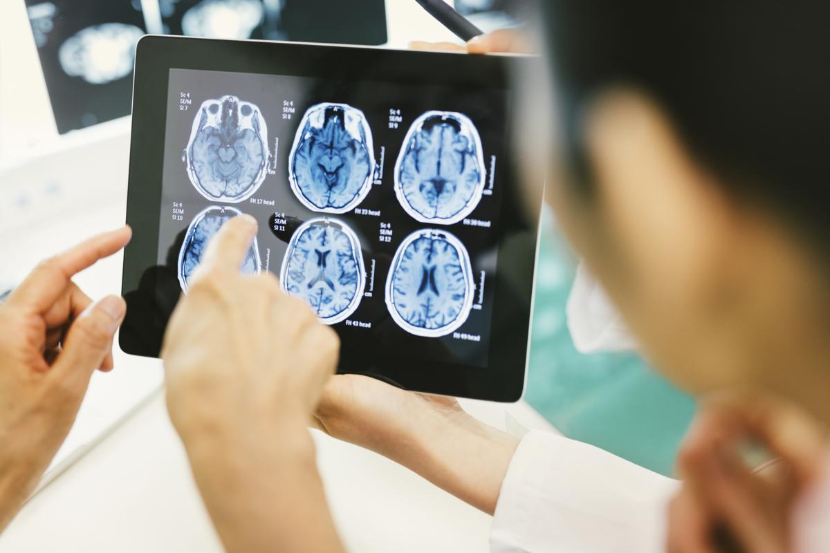 Cerebral Hemorrhage Prevention