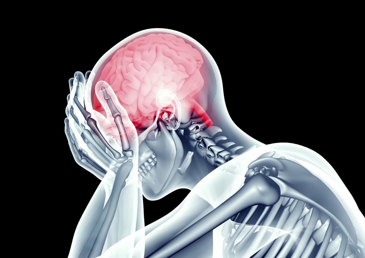 Brainstem Stroke Symptoms