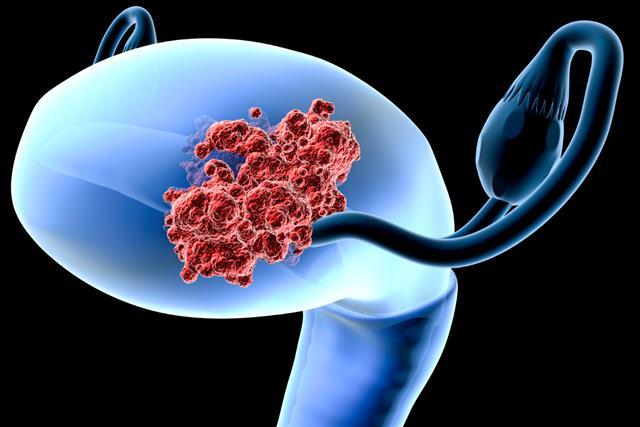 Endometrial (uterus) cancer