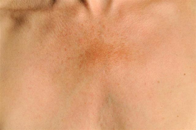 Melasma: skin pigmentation disorder