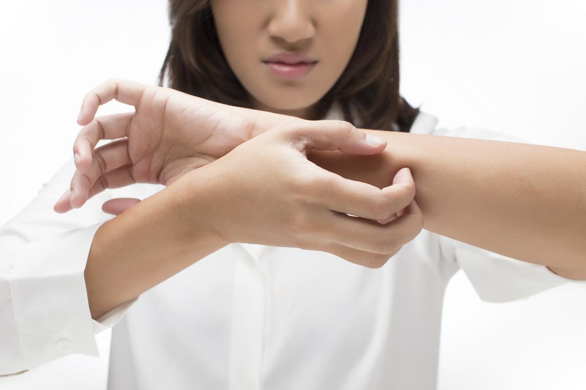 Seborrheic Dermatitis: Causes, Symptoms and Treatment