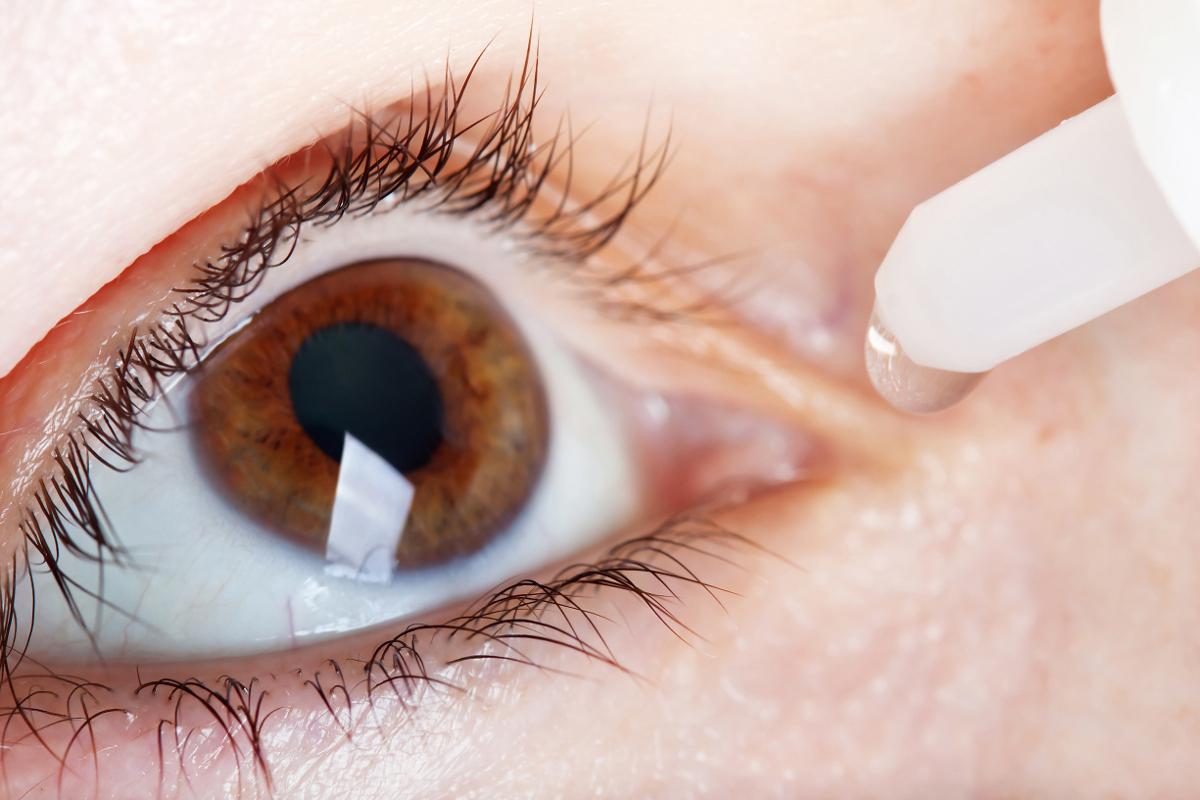 Dry Eyes After Lasik Eye Surgery