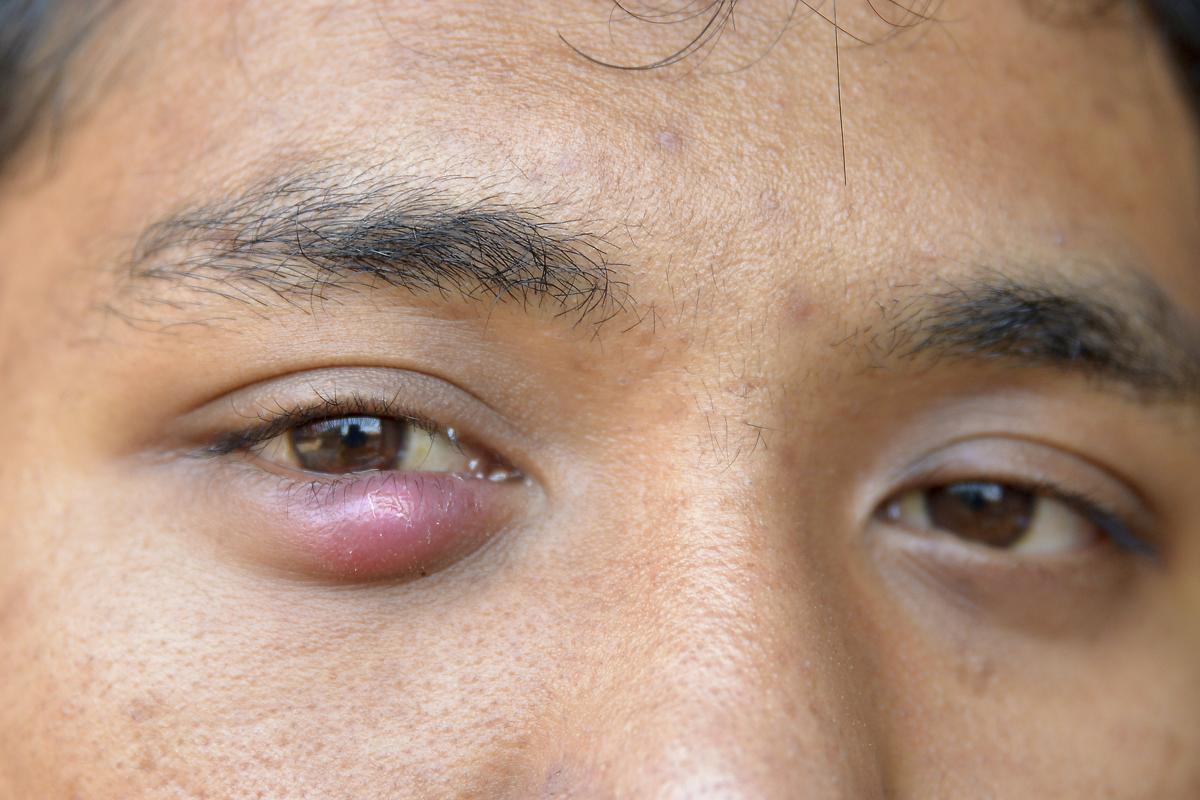 Eye Stye Treatment