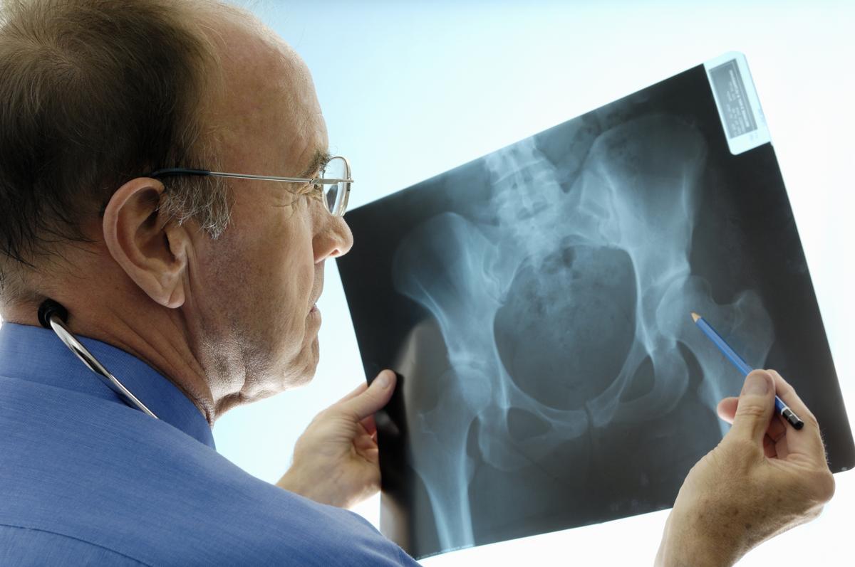 Hip Bursitis Symptoms