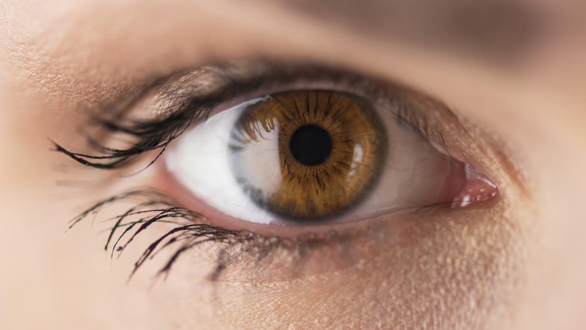 Bloodshot Eyes and High Blood Pressure