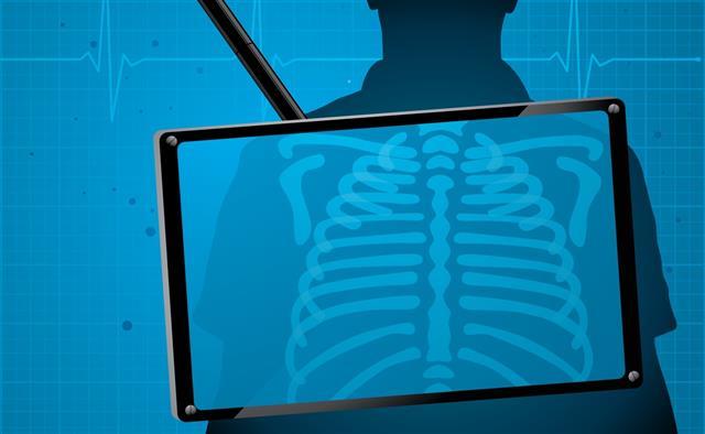 X-ray monitoring