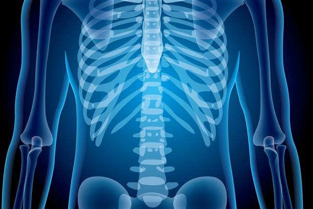 X-Ray-Illustrator