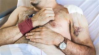 Injury patient
