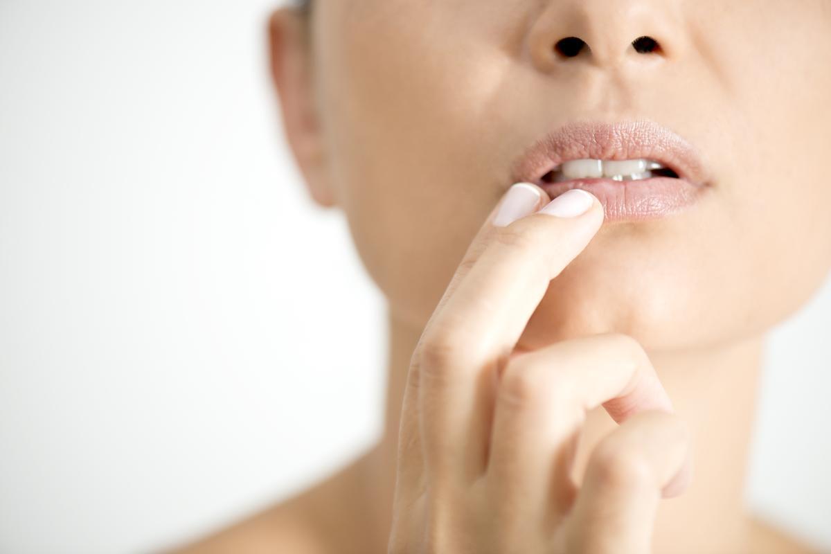 Peeling Lips
