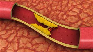Clogged Artery (3D)