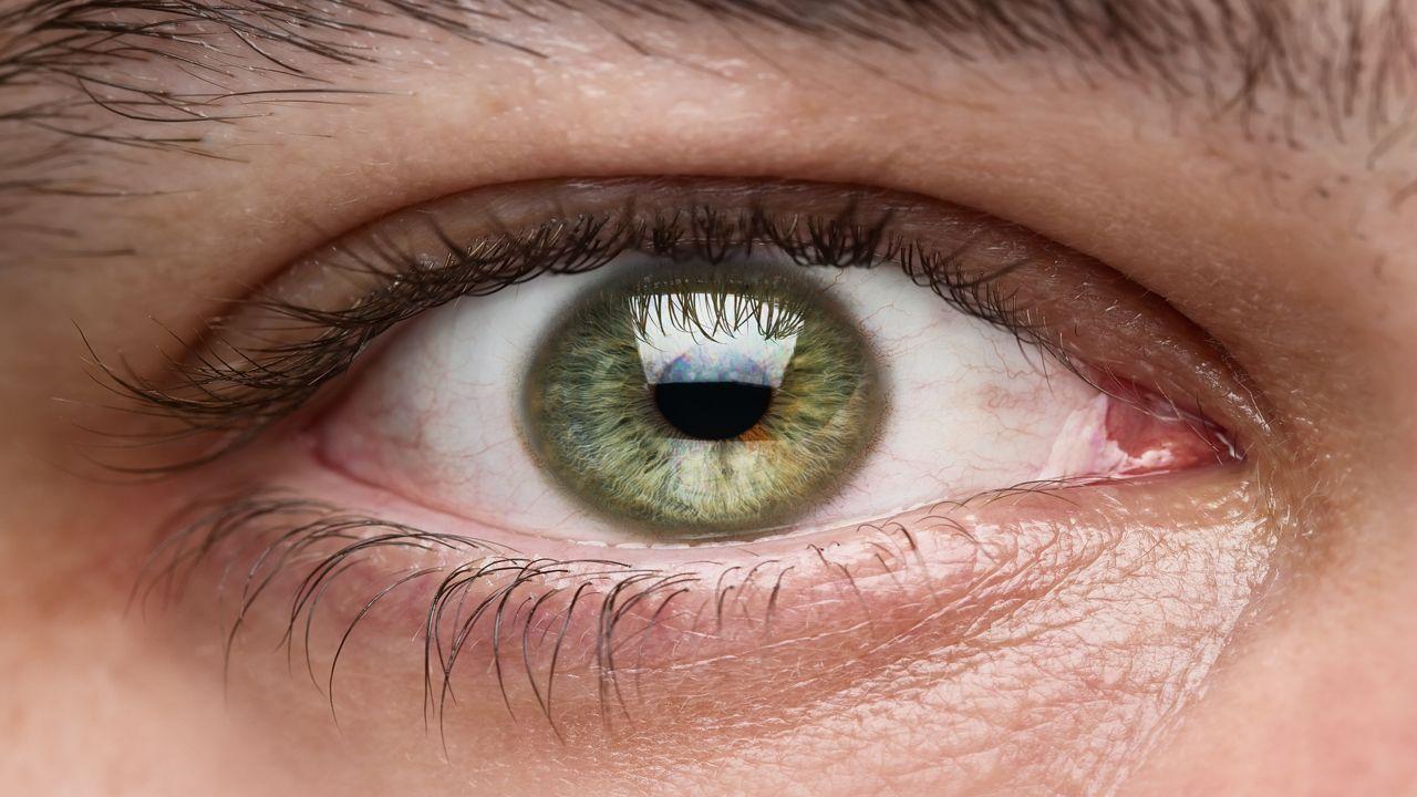 Hole in Retina