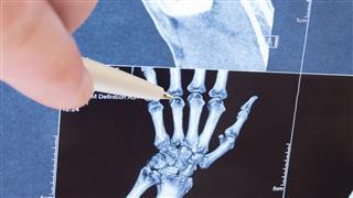 Bone Density Test Preparation