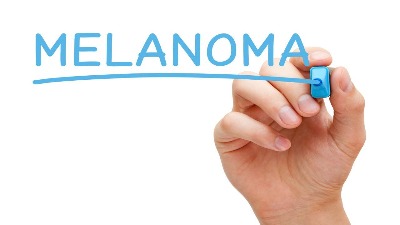 Metastatic Melanoma Symptoms