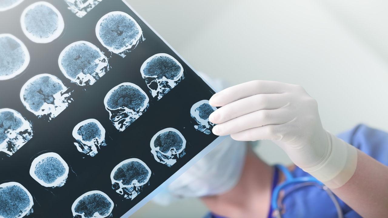 Brain Hemorrhage Recovery