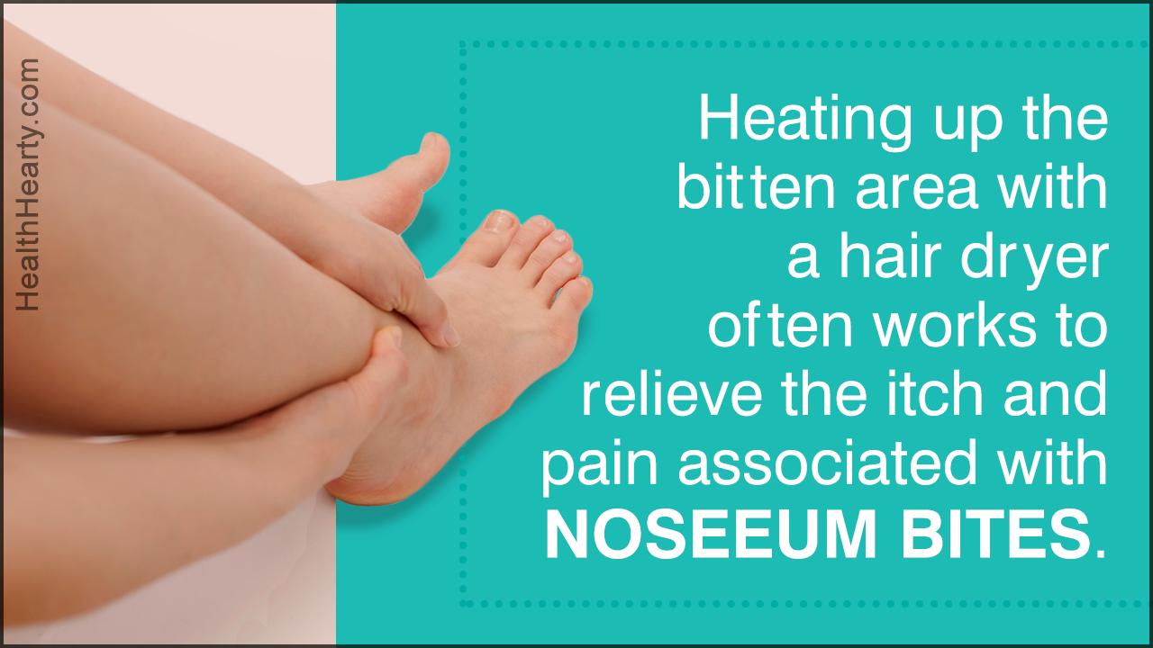 How to Treat Noseeum Bites